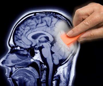 Wymazywanie fragmentu mózgu